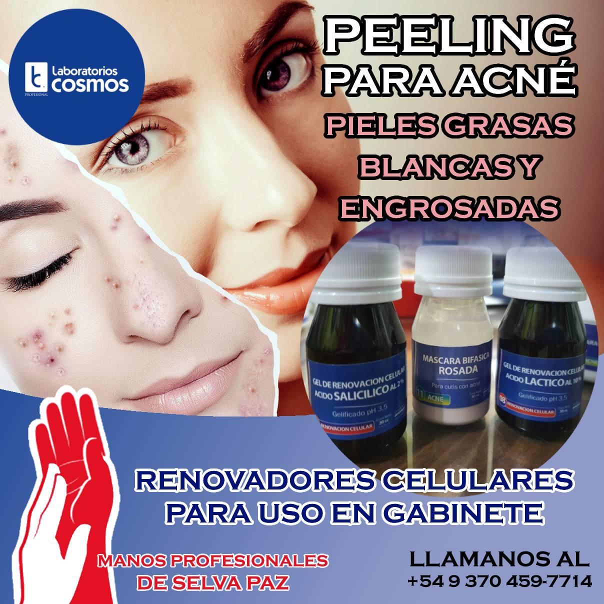Peeling para Acné. Renovadores Celulares para pieles grasas, blancas y engrosadas.